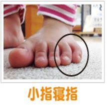 小指根指(内反小趾)
