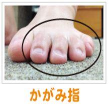 かがみ指(ハンマートゥ)2